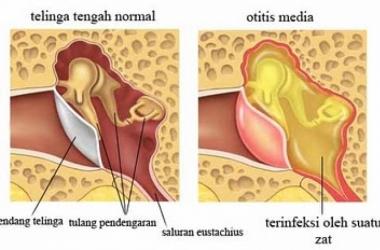 Radang Telinga Tengah (kopok-en)