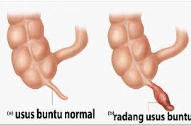 APENDISITIS (USUS BUNTU)